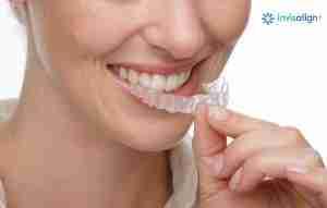 Orthodontics braces