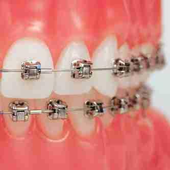 Speed braces