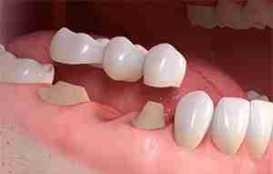 Dental Bridge Treatment