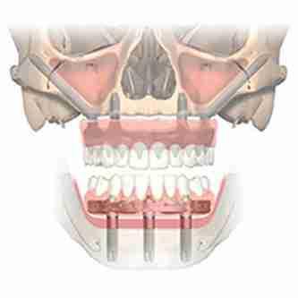 zygoma-implants