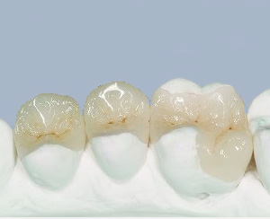 Dental inlays onlays