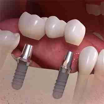 Implant bridges