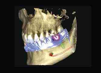 single implant x-ray