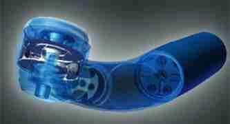 dental fillings technologies